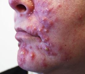 Cystické akné a léčba - jak na něj?