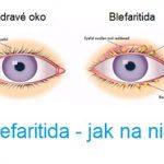Blefaritida – zánět očních víček – příčiny, příznaky, léčba