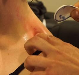 Při gua sha, masér škrábe pokožku krátkými či dlouhými tahy