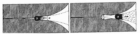 Obr. 5 Schéma uskřinutí i uvolnění meniskoidu podle Wolfa a Kosa. a) Meniskoid se dostal z normální polohy a mezi kl. plošky b. b) Pro terapii stačí překonat jen nevelký odpor od c k d.