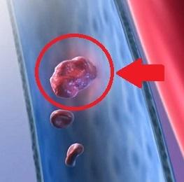 Plicní embolie je ucpání krevního řečiště plic vmetkem (embolus).