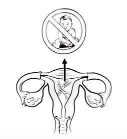 Pacientky s Ashermanovým syndromem mají velký problém otěhotnět.