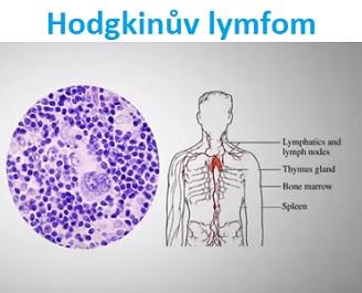 Hodgkinova choroba (Hodgkinův lymfom) - příznaky, příčiny a léčba