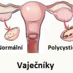 Syndrom polycystických vaječníků (ovarií), neboli PCOS – příznaky, příčiny a léčba