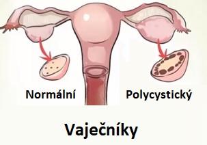 Syndrom polycystických vaječníků (ovarií), neboli PCOS