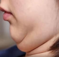 Jak na tuk na krku? Jak ho odstranit?