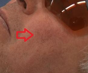 Existují 2 typy kuperózy na tváři - vrozená a získaná.