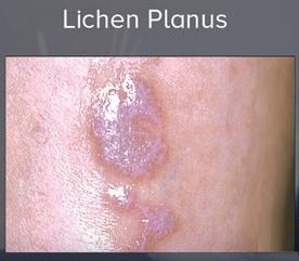 Lichen planus je kožní vyrážka