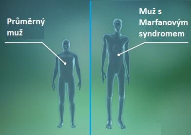 Dlouhé končetiny a dlouhé tělo jsou jedním z příznaků Marfanova syndromu.