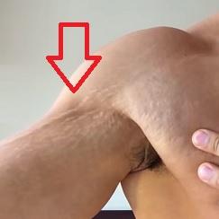 Jednou z příčin strií na pokožce může být i rychlé nabrání svalové hmoty při posilování.