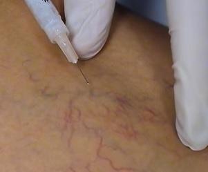 Ve většině případů skleroterapie se sklerozant injektuje přes velmi jemnou jehlu přímo do žíly.