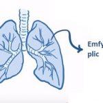 Emfyzém plic (rozedma plic) – příčiny, příznaky a léčba