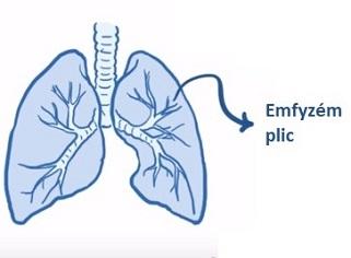 Hlavním příznakem emfyzému je dušnost (neboli dýchavičnost), která obvykle začíná postupně.