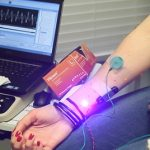 Elektromyografie (EMG) – co je to a jak probíhá?