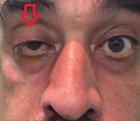 Povislé jedno nebo obě oční víčka (tzv. ptóza) je jedním z příznaků Myasthenia gravis.