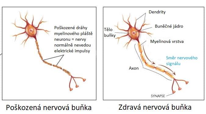 Zdravá a poškozená nervová buňka (neuron)