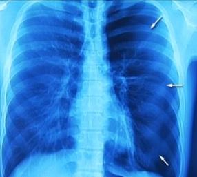 Pneumotorax můžeme zjednodušeně definovat jako přítomnost vzduchu v pleurální dutině.