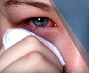Jedním z hlavních příznaků Sjogrenova syndromu jsou suché oči.