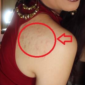 Jak si poradit s akné na ramenou? Máme pro vás pár rad a tipů.