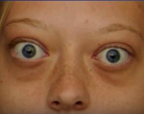 Gravesova oftalmopatie (Gravesova choroba)