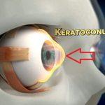 Keratokonus – co je to? Příčiny, příznaky a léčba