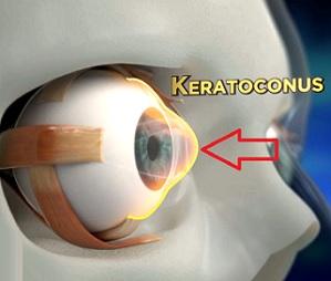Keratokonus je progresivní oční onemocnění, při kterém normálně kulatá rohovka vybledne a začne se tvarovat do kuželovitého tvaru