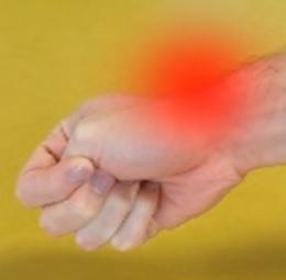 Tendinitida je bolestivé onemocnění šlach, někdy charakteru zánětu.