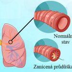 Přírodní léčba bronchitidy – jak na to?
