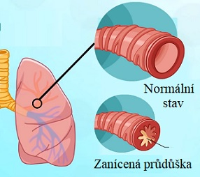 Bronchitida se dá léčit i pomocí přírodních postupů.