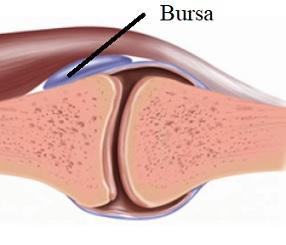 Bursitida (burzitida) - zánět kloubní burzy - příznaky, příčiny a léčba