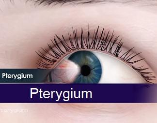 Pterygium nemusí způsobovat žádné potíže, ovšem rozsáhlejší formy snižují zrakovou ostrost, vyvolávají pocit tahu a tlaku.