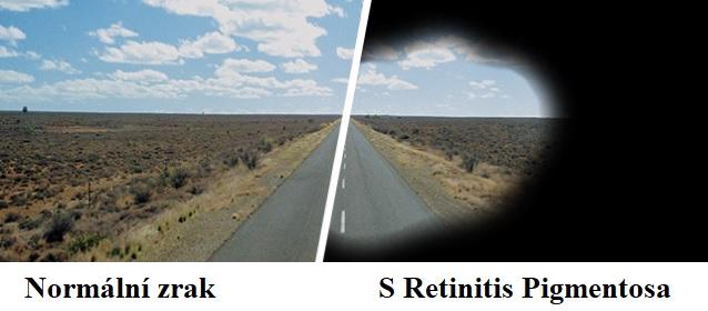 Takto můžete vidět s pigmentovou retinitidou.