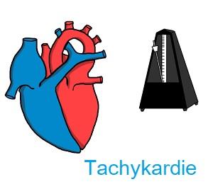 Tachykardie neboli zrychlení srdečního rytmu může být odezvou na určité stimuly organismu (cvičení například) nebo také příznakem některé z nemocí.