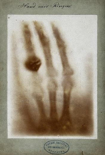 Jeden z prvních snímků pomocí rentgenu. Zdroj obrázku: By Wilhelm Röntgen. ([1].) [Public domain], via Wikimedia Commons