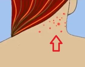 Máme pro vás několik tipů, jak si poradit s akné na krku.