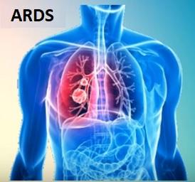 ARDS, nebo syndrom akutní respirační tísně, je plicní onemocnění, které vede k nízké hladině kyslíku v krvi.