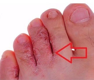 Atletická noha (tinea pedis) je houbová infekce, která obvykle začíná mezi prsty.