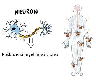 U nejčastější formy Guillain-Barre syndromu, je poškozen ochranný obal nervů (myelinový plášť).