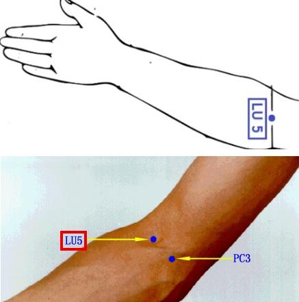 Akupunkturní bod LU 5