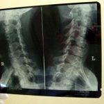 40 TOP zajímavostí o rentgenovém záření