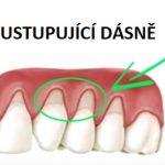 Jak na ustupující dásně? Zkuste tyto domácí metody