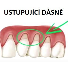 Jak si poradit s ustupujícími dásněmi? V našem článku jsme pro vás připravili několik tipů.