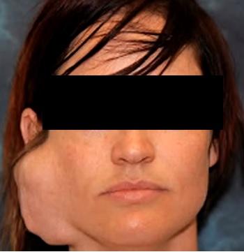 Benigní lipomatózní choroby představují soubor onemocnění charakterizovaných abnormálním ukládáním a růstem tukové tkáně.