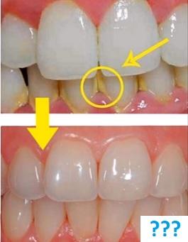 Jak bojovat se zubním plakem? Zkuste naše tipy.