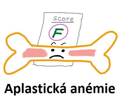 Aplastická anemie znamená chudokrevnost, která má původ v nedostatečné tvorbě krvinek v kostní dřeni.