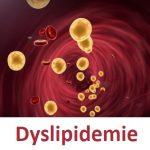 Dyslipidemie – příznaky, příčiny a léčba