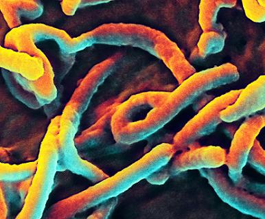 Digitálně zbarvený obrázek ukazuje, jak části viru Ebola vystupují z povrchu buňky.