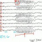 Elektroencefalografie (EEG) – co je to a co znamenají výsledky?