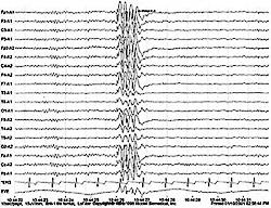 Vzorový záznam EEG, který ukazuje ohniskovou špičku typickou pro záchvat.