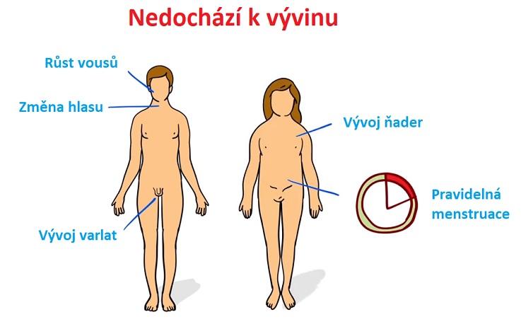 Toto jsou časté příznaky Kallmannova syndromu.